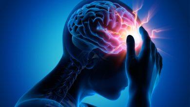 Photo of Cách xử lý đột quỵ/tai biến mạch máu não